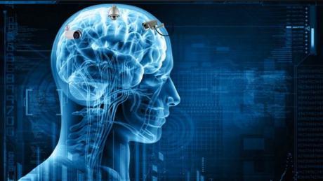 remote-neural-monitoring
