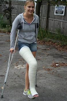 long_leg_cast