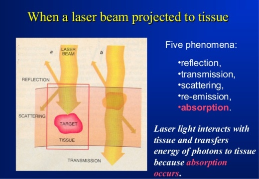 laser-and-its-medical-applications-28-638