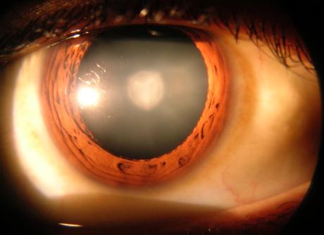 460px-Cataract_in_human_eye
